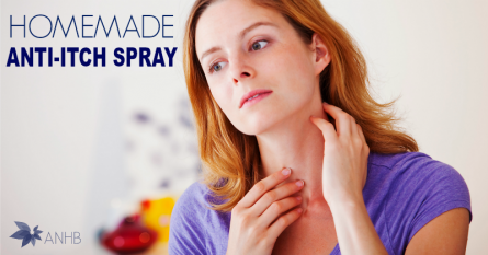 Homemade Anti-Itch Spray