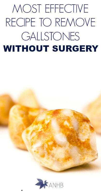 Most Effect Recipe to Remove Gallstones Without Surgery #natural #health #heallthyliving #gallstones #remedies