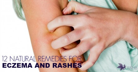 12 Natural Remedies for Eczema and Rashes